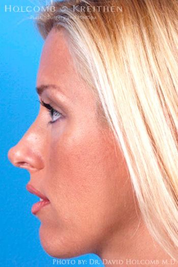 Cheek Implant Gallery - Patient 6279224 - Image 5