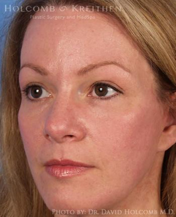 Brow Lift Gallery - Patient 6279225 - Image 4