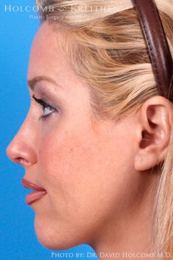Cheek Implant Gallery - Patient 6279224 - Image 6