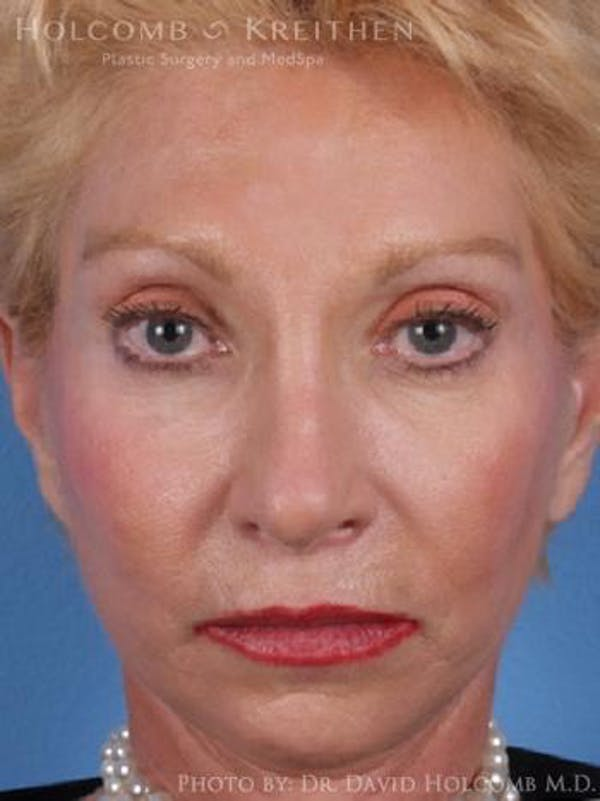 Chin Implant Gallery - Patient 6279226 - Image 1