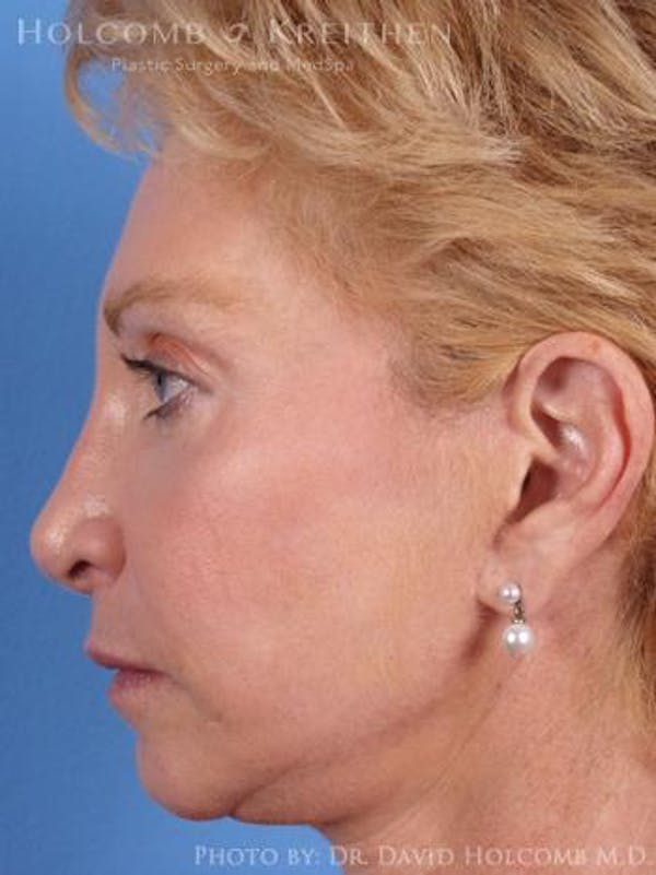 Chin Implant Gallery - Patient 6279226 - Image 5