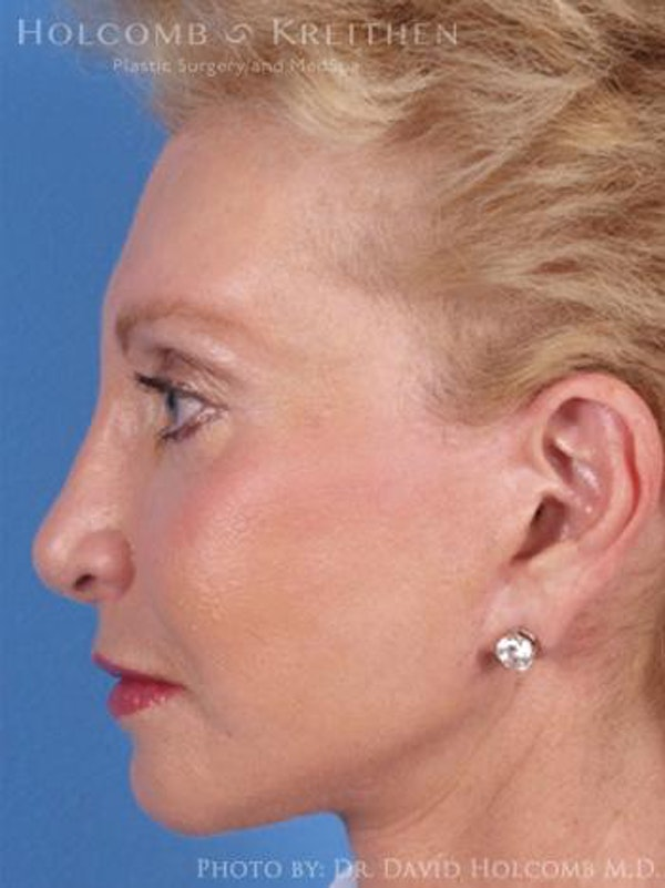 Chin Implant Gallery - Patient 6279226 - Image 6