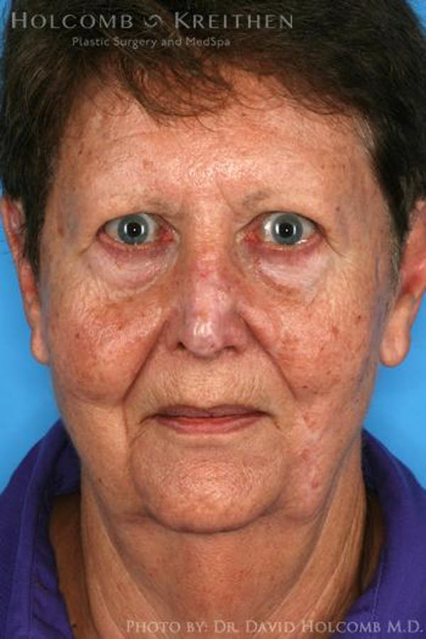 Eyelid Lift Gallery - Patient 6279230 - Image 1
