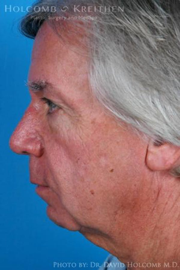 Chin Implant Gallery - Patient 6279229 - Image 5