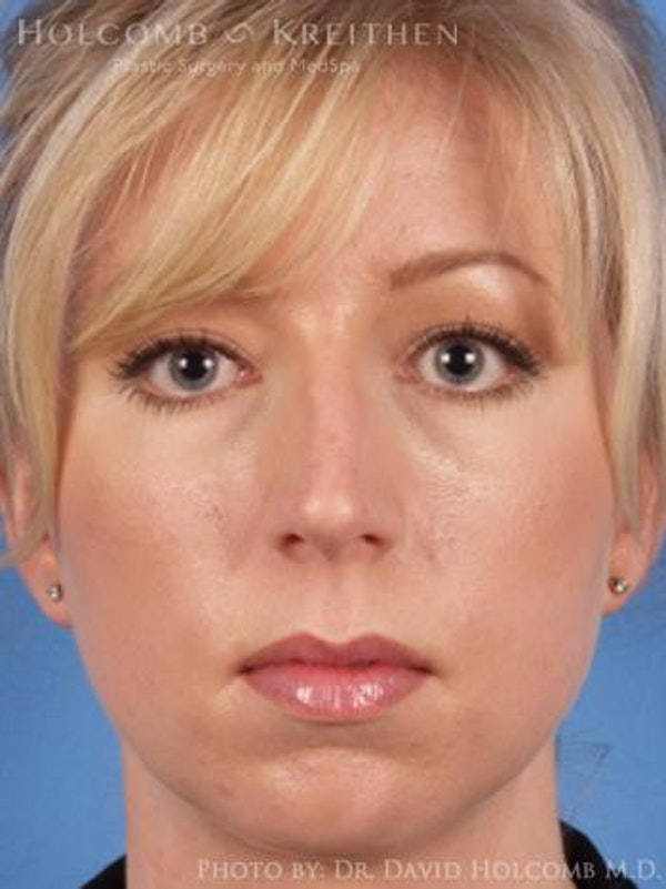 Chin Implant Gallery - Patient 6279232 - Image 1