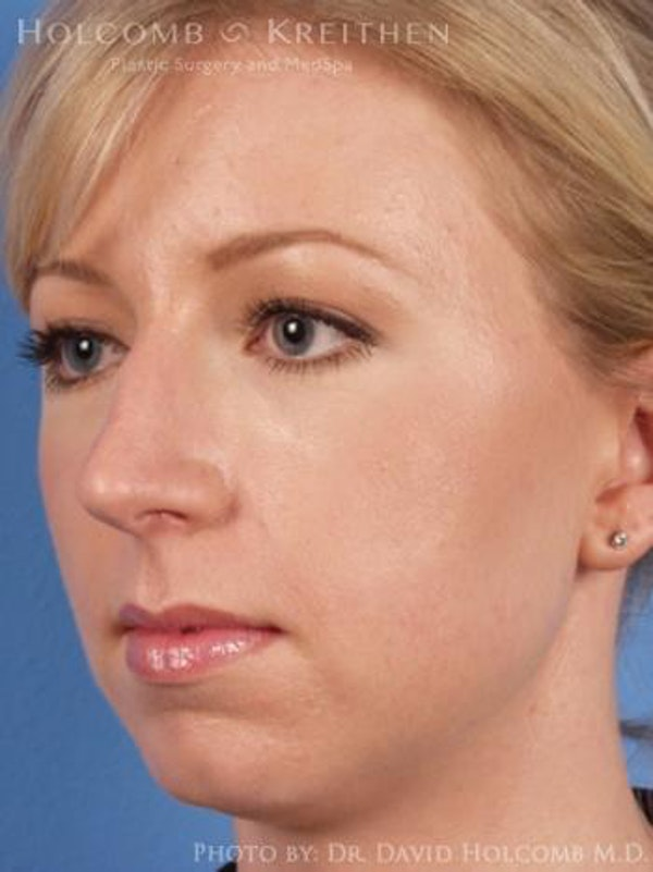 Chin Implant Gallery - Patient 6279232 - Image 3