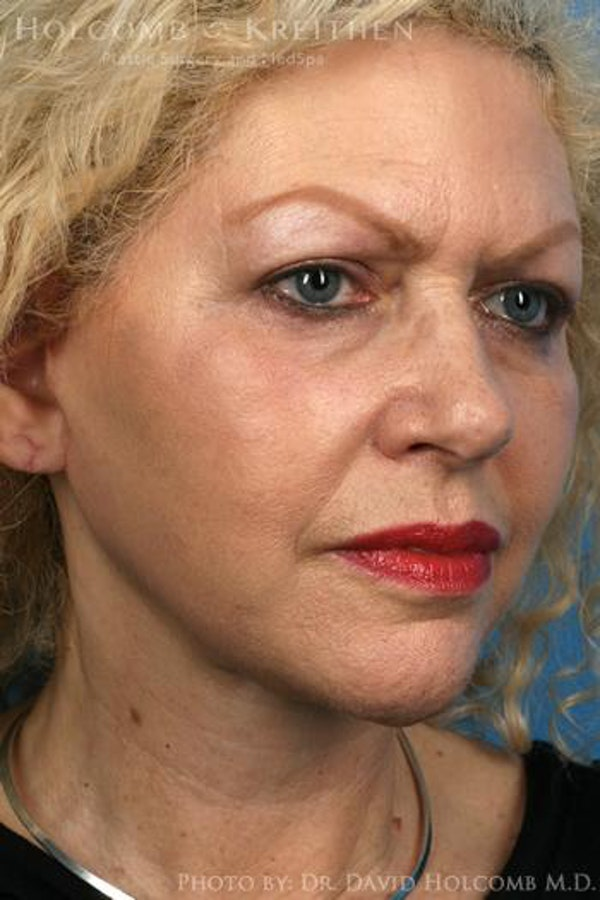 Facelift Gallery - Patient 6279233 - Image 4