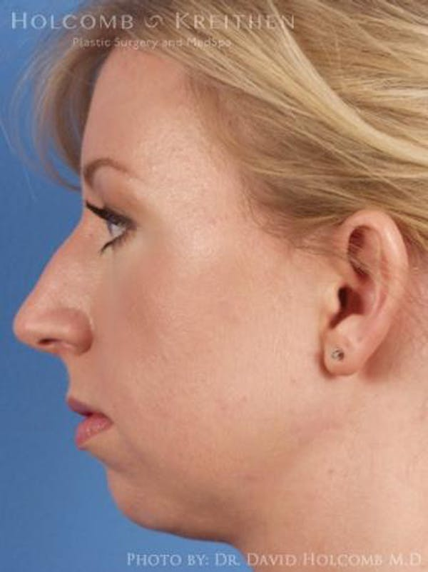 Chin Implant Gallery - Patient 6279232 - Image 5