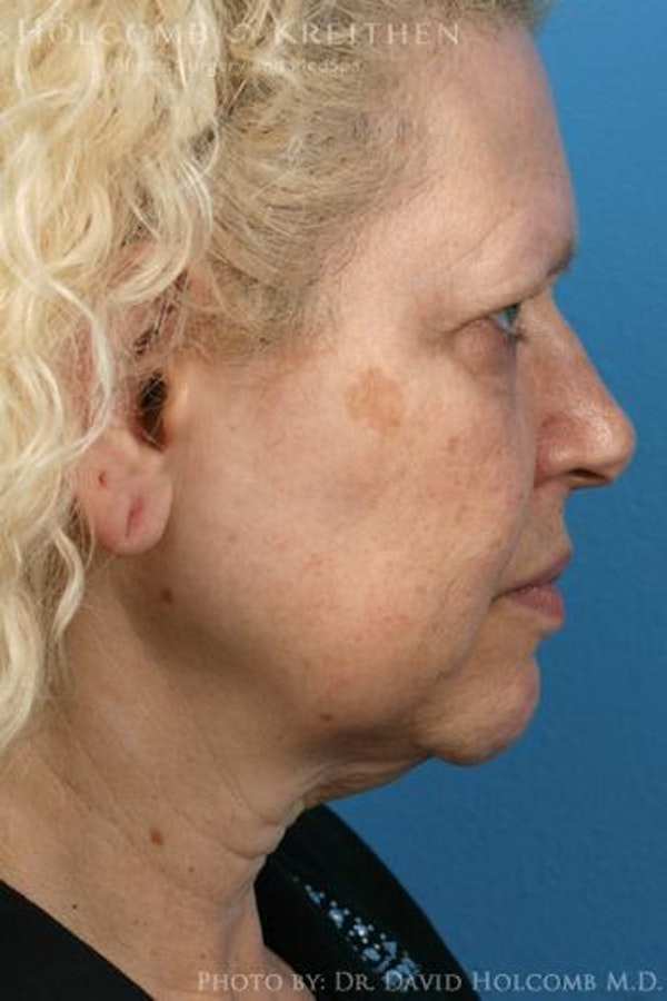 Facelift Gallery - Patient 6279233 - Image 5