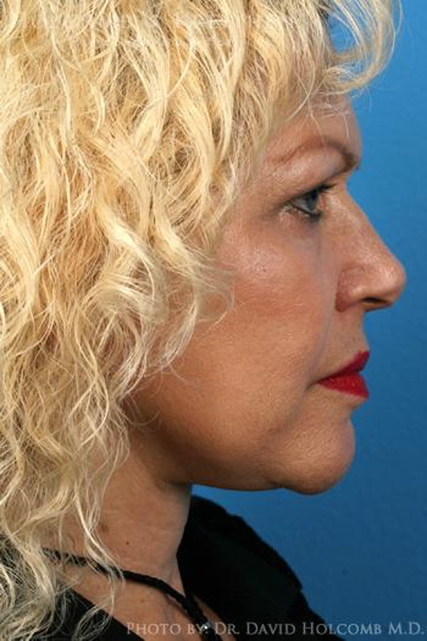 Facelift Gallery - Patient 6279233 - Image 6