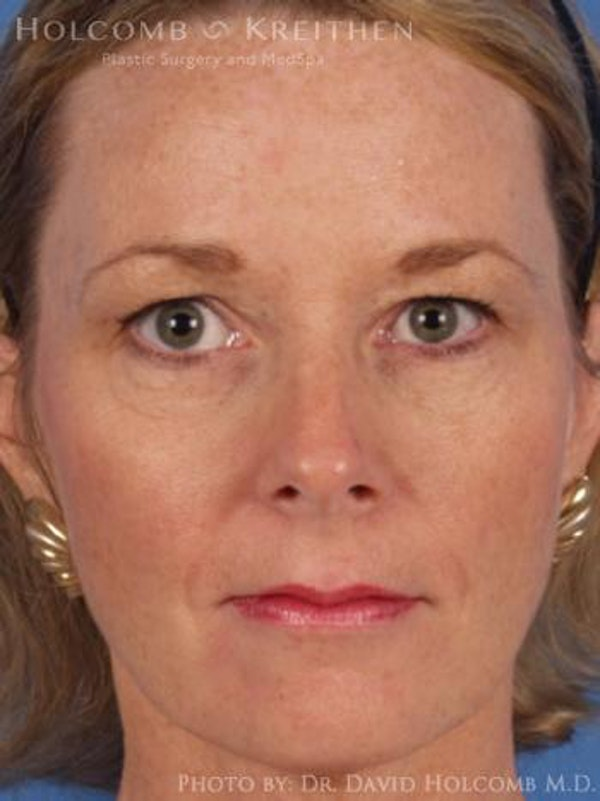 Eyelid Lift Gallery - Patient 6279237 - Image 1