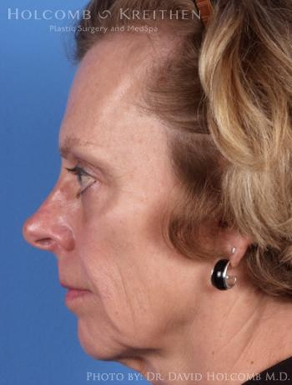 Chin Implant Gallery - Patient 6279236 - Image 5