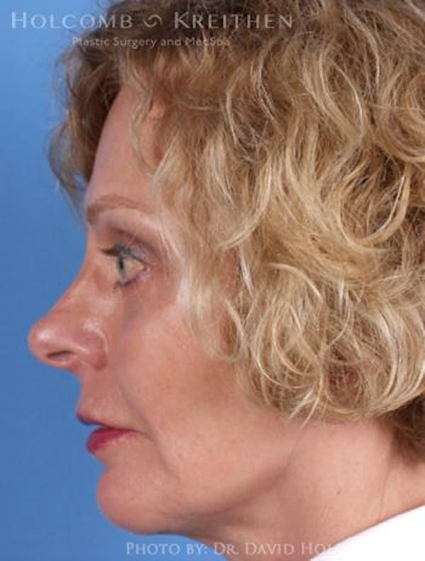 Chin Implant Gallery - Patient 6279236 - Image 6