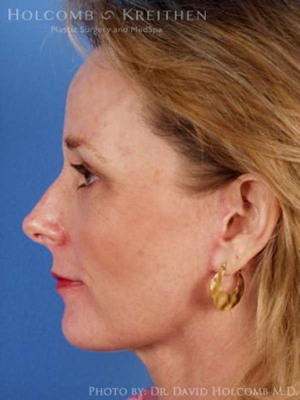 Eyelid Lift Gallery - Patient 6279237 - Image 6