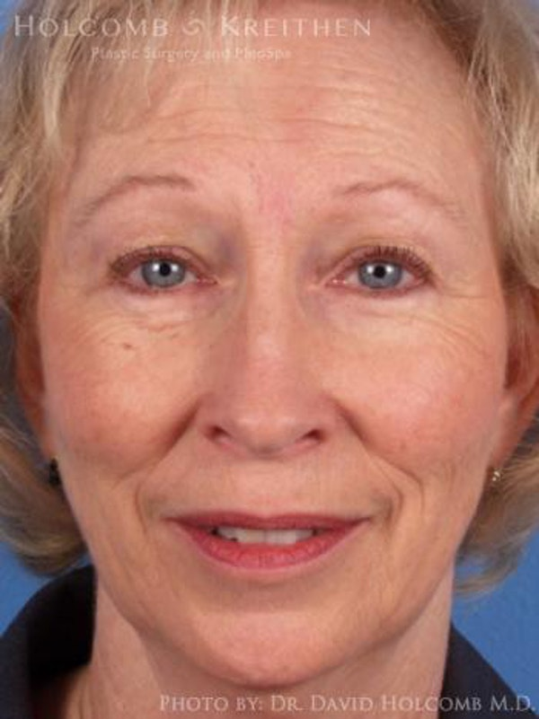 Facelift Gallery - Patient 6279245 - Image 1