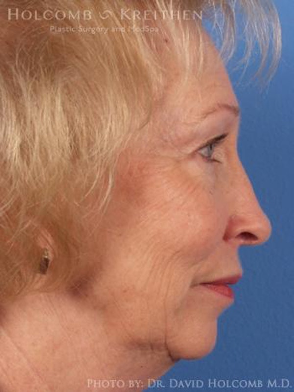 Facelift Gallery - Patient 6279245 - Image 5