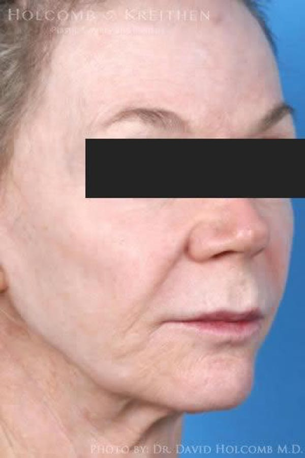Lip Lift Gallery - Patient 6279251 - Image 1