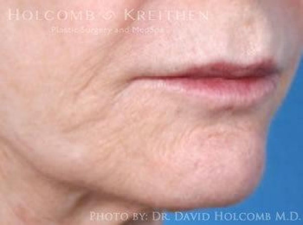 Lip Lift Gallery - Patient 6279251 - Image 3