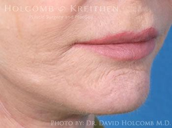 Lip Lift Gallery - Patient 6279251 - Image 4