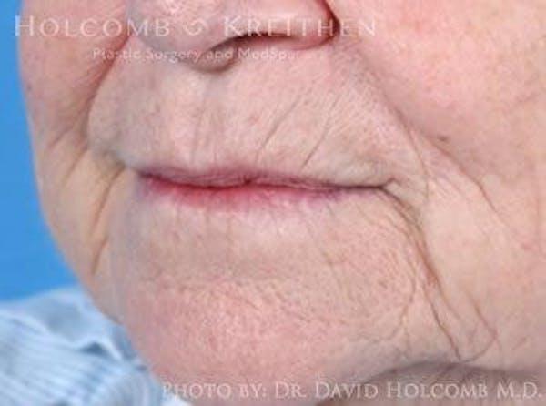 Lip Lift Gallery - Patient 6279256 - Image 3