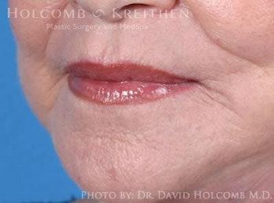 Lip Lift Gallery - Patient 6279256 - Image 4