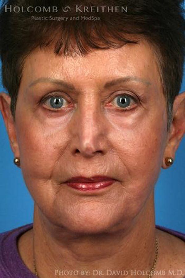 Facelift Gallery - Patient 6279262 - Image 2