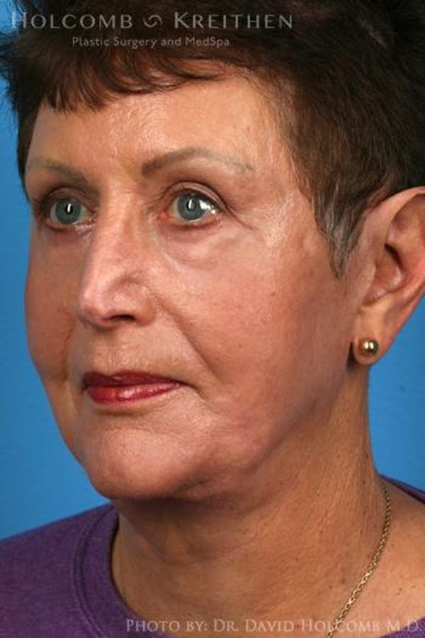 Facelift Gallery - Patient 6279262 - Image 4