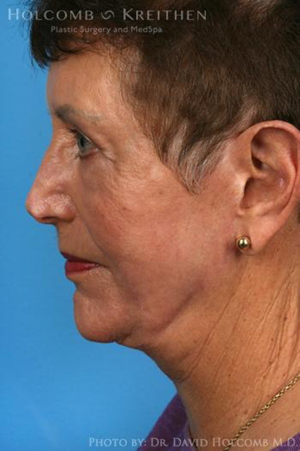 Facelift Gallery - Patient 6279262 - Image 6