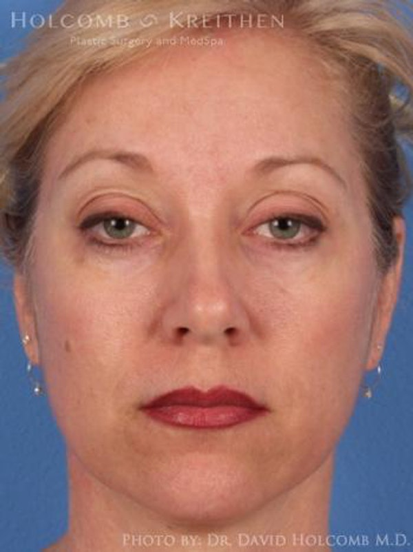 Facelift Gallery - Patient 6279269 - Image 1