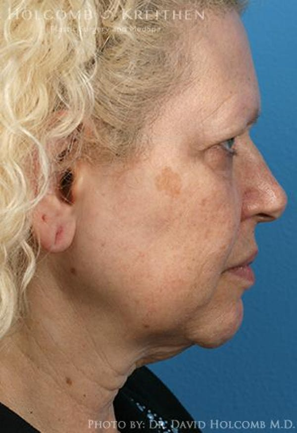 Neck Contouring Gallery - Patient 6279264 - Image 5