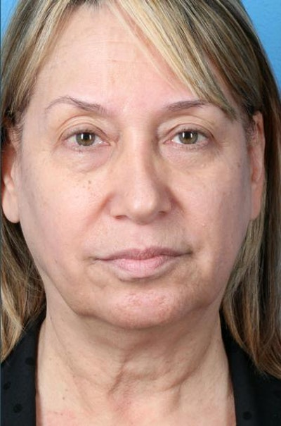 Neck Contouring Gallery - Patient 6279272 - Image 1