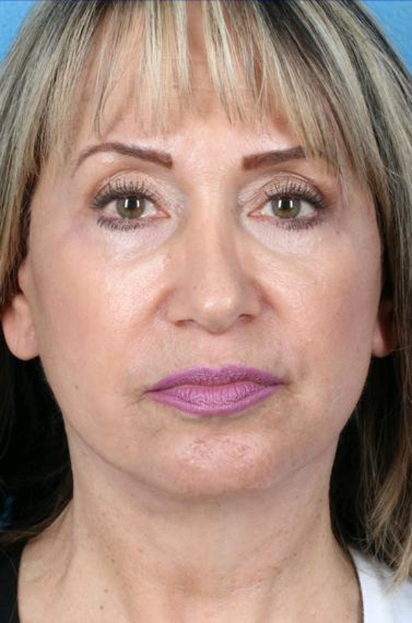 Neck Contouring Gallery - Patient 6279272 - Image 2