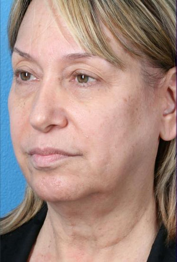 Neck Contouring Gallery - Patient 6279272 - Image 3