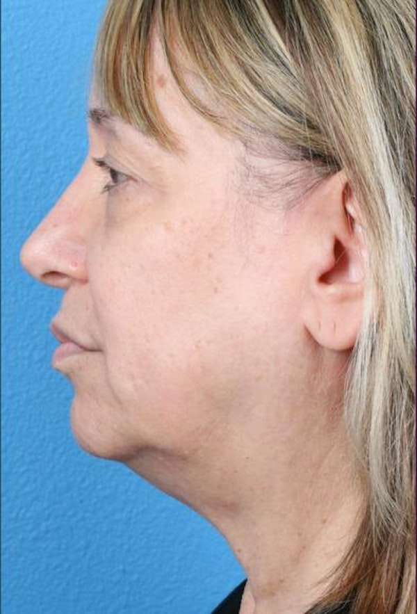 Neck Contouring Gallery - Patient 6279272 - Image 5
