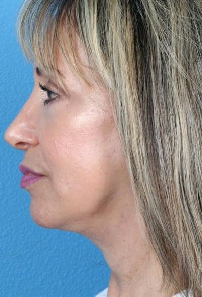 Neck Contouring Gallery - Patient 6279272 - Image 6