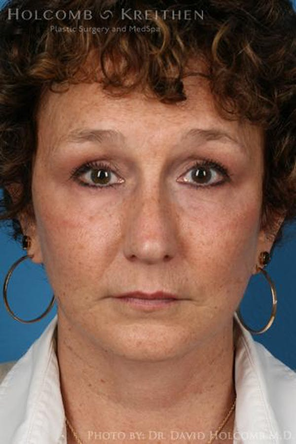 Neck Contouring Gallery - Patient 6279293 - Image 2