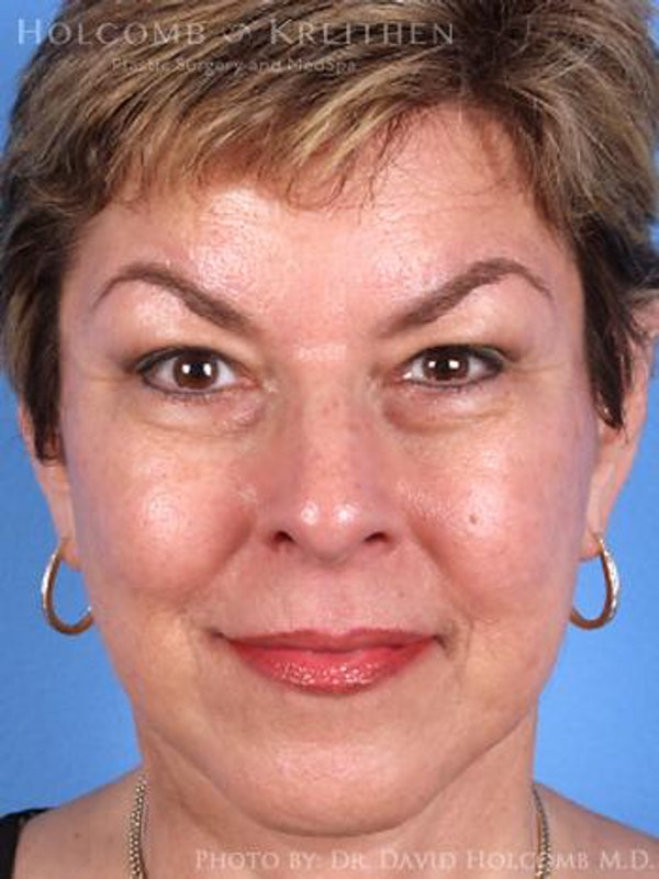 Facelift Gallery - Patient 6279294 - Image 2