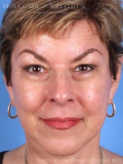 Facelift Gallery - Patient 6279294 - Image 2