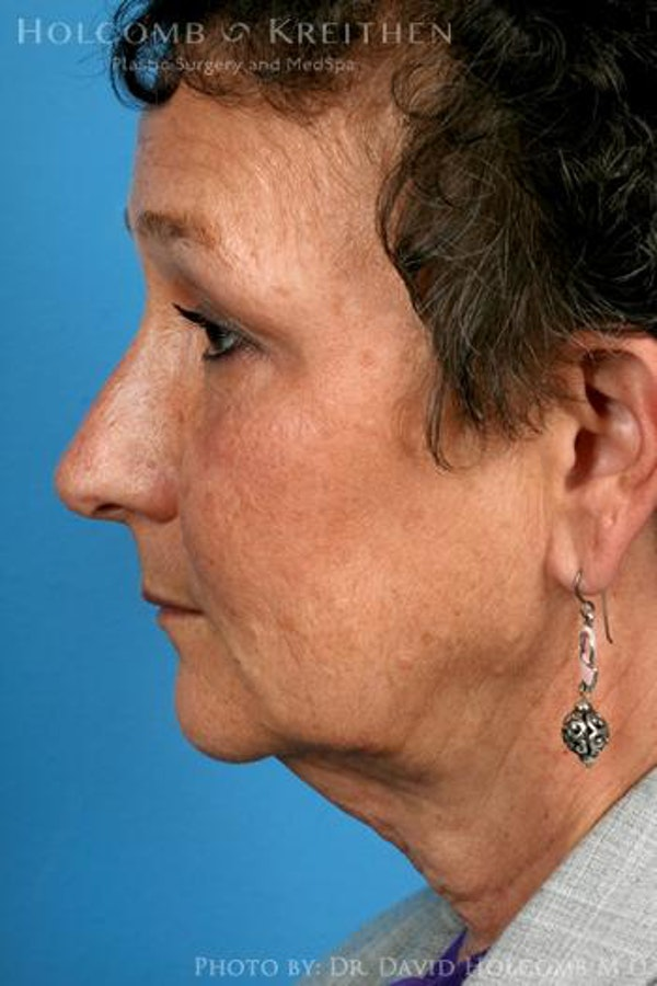 Neck Contouring Gallery - Patient 6279293 - Image 5