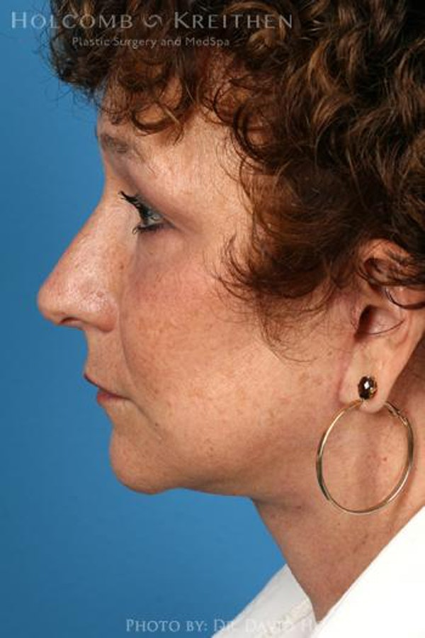Neck Contouring Gallery - Patient 6279293 - Image 6