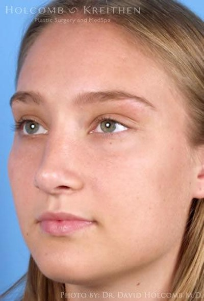 Rhinoplasty Gallery - Patient 6279295 - Image 4