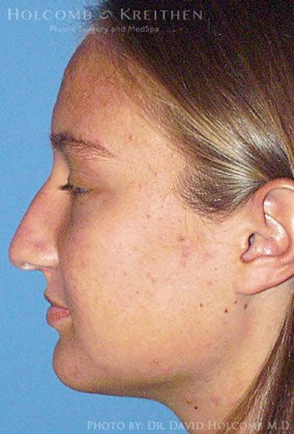 Rhinoplasty Gallery - Patient 6279295 - Image 5