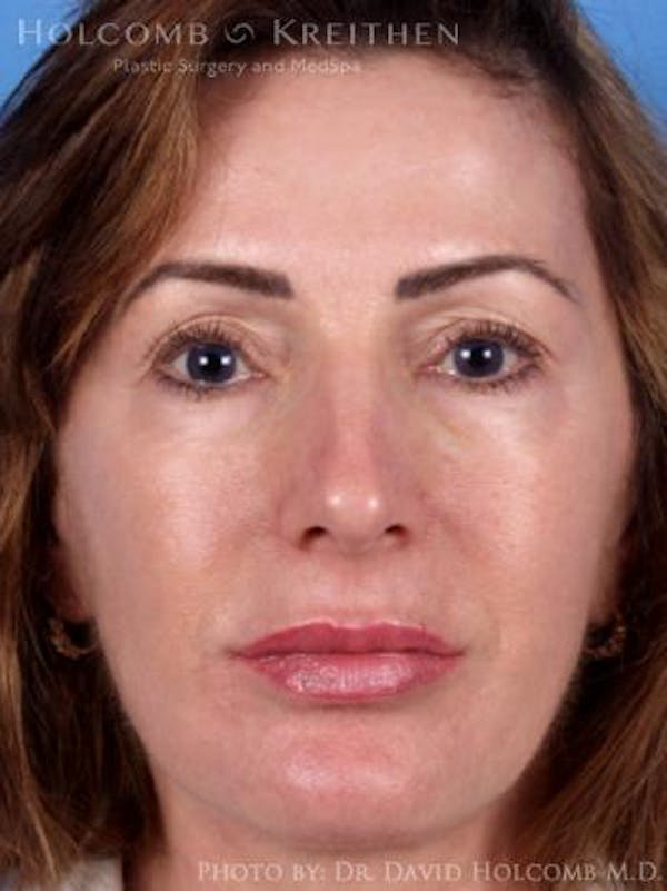 Neck Contouring Gallery - Patient 6279297 - Image 2