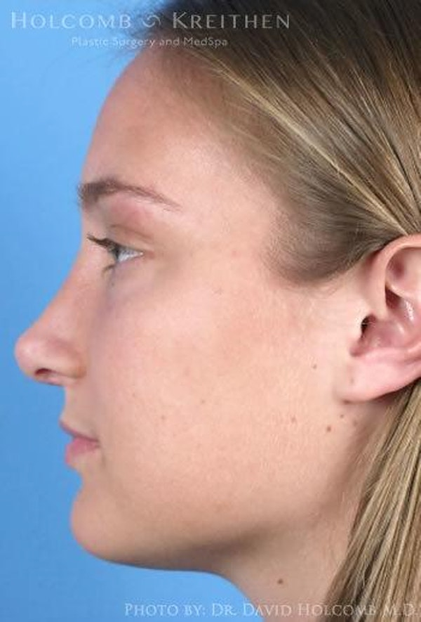 Rhinoplasty Gallery - Patient 6279295 - Image 6