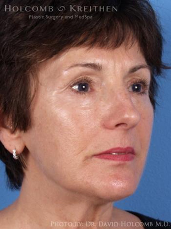 Neck Contouring Gallery - Patient 6279297 - Image 3