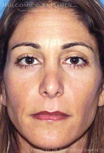 Rhinoplasty Gallery - Patient 6279299 - Image 1