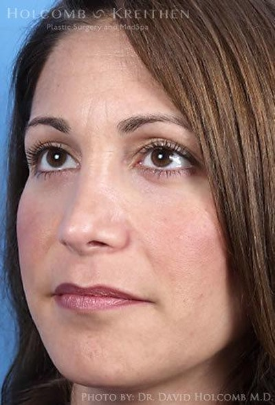 Rhinoplasty Gallery - Patient 6279299 - Image 4