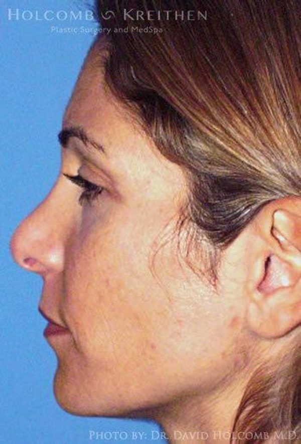 Rhinoplasty Gallery - Patient 6279299 - Image 5