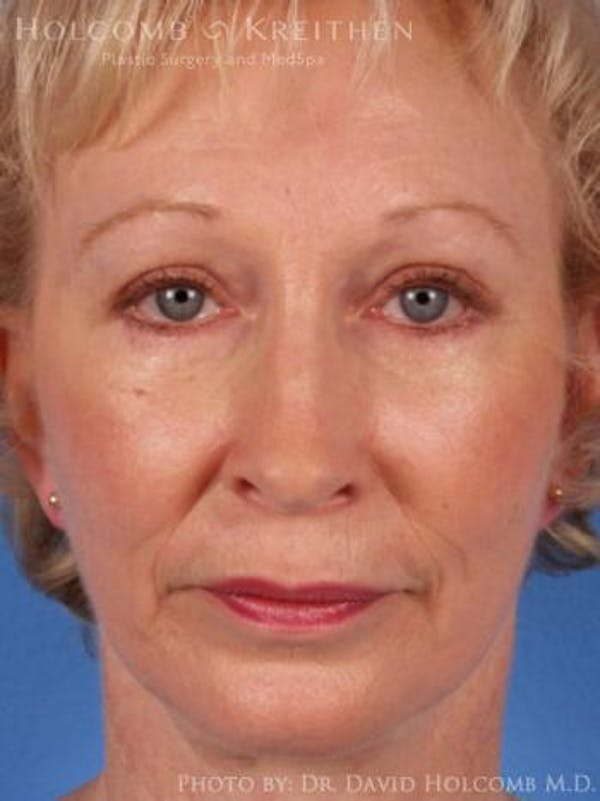 Neck Contouring Gallery - Patient 6279300 - Image 2