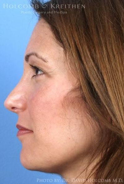 Rhinoplasty Gallery - Patient 6279299 - Image 6